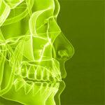 TeethSinusPost1_th.jpg