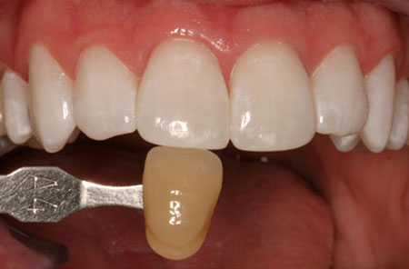 Teeth Whitening: After