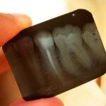 DentalXrays_543