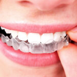 Care-After-Invisible-Aligners_543